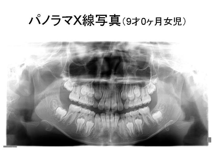 レントゲン 乳歯