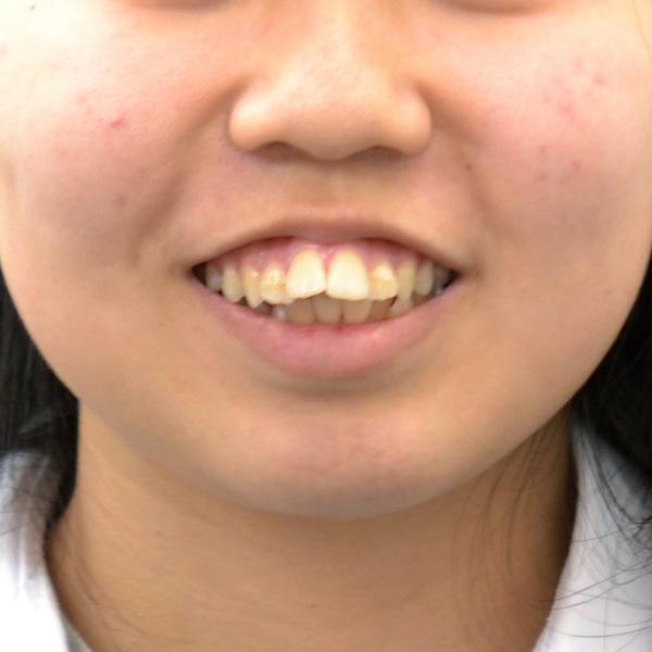 上顎前突(出っ歯)治療例  松江 りゅう矯正歯科クリニック